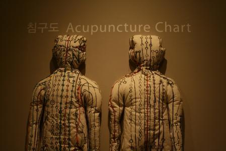 Co se v našem těle děje při akupunktuře?